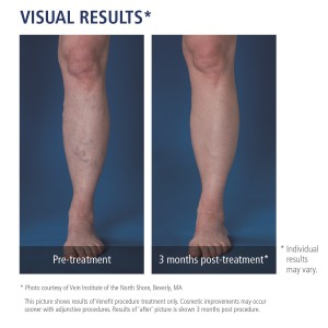 Before and After Treatment for Varicose Veins