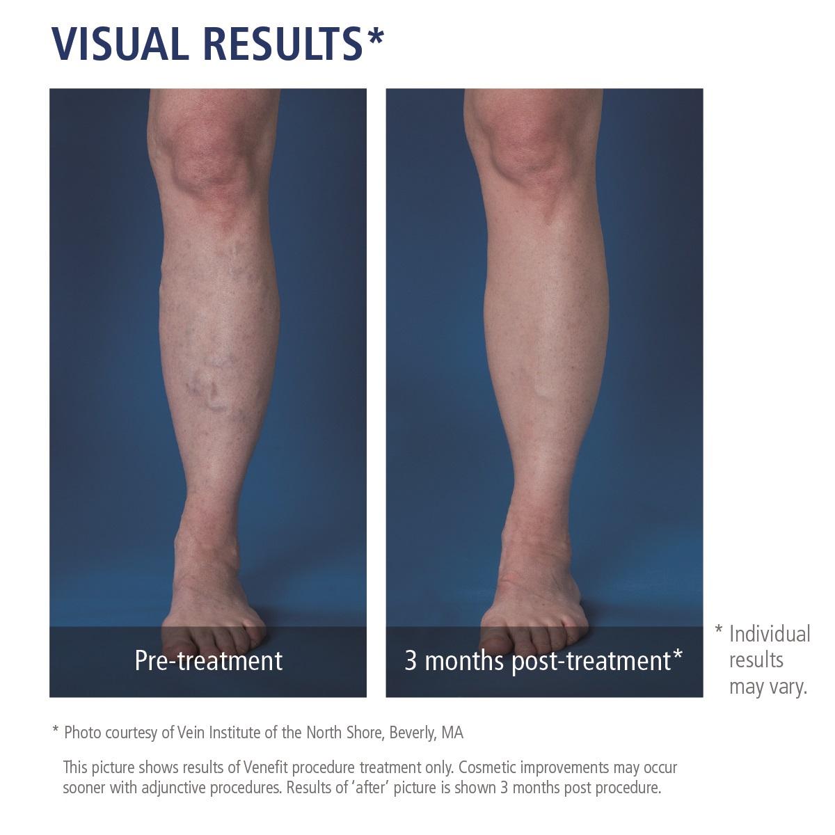 chronic venous insufficiency treatment
