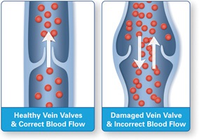 "Varicose Veins - An ""Inside View"""